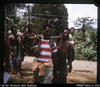 """58. Patient with angina and C.C.F. being brought to hospital on stretcher of bamboo poles a..."